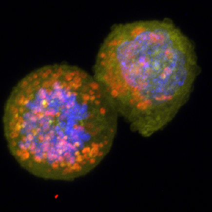 Human breast cancer cells like these were used in the study. (Image created by Shyam Khatau/ Wirtz Lab)