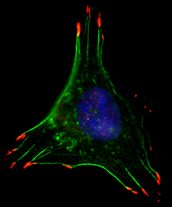 n low oxygen conditions, breast cancer cells form structures that facilitate movement, such as filaments that allow the cell to contract (green) and cellular 'hands' that grab surfaces to pull the cell along (red). Credit: Daniele Gilkes